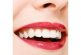 3 x albire dentara profesionala ZOOM® Advanced Power